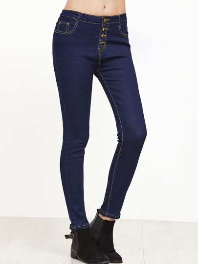 Pantaloni Denim Con Bottoni - Blu